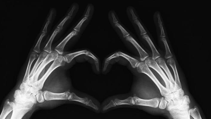 8 de noviembre: día del radiologo
