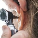 """Es importante transmitir a la población que no use los famosos hisopos porque traumatizan la piel que cubre el conducto auditivo. Al sacar precozmente la última capa de piel que protege ese conducto, éste queda mucho más vulnerable a que ingresen bacterias"""""""