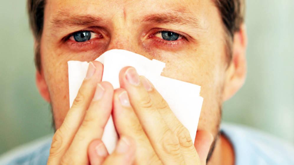 remedios-caseros-para-aliviar-los-sintomas-de-la-alergia